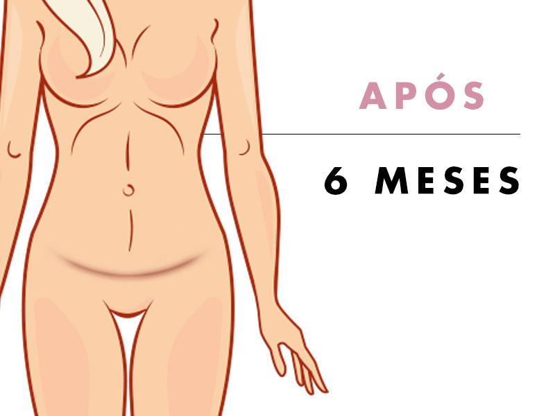 abdominoplastia depois 6 meses