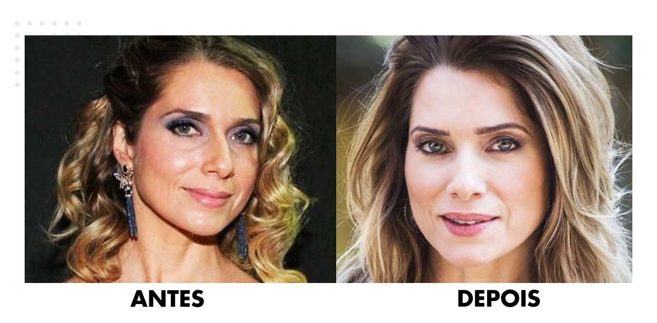 cirurgia plastica face antes depois