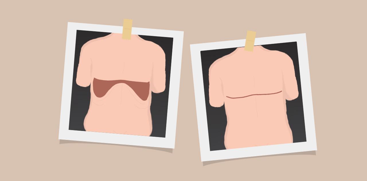 torsoplastia reversa