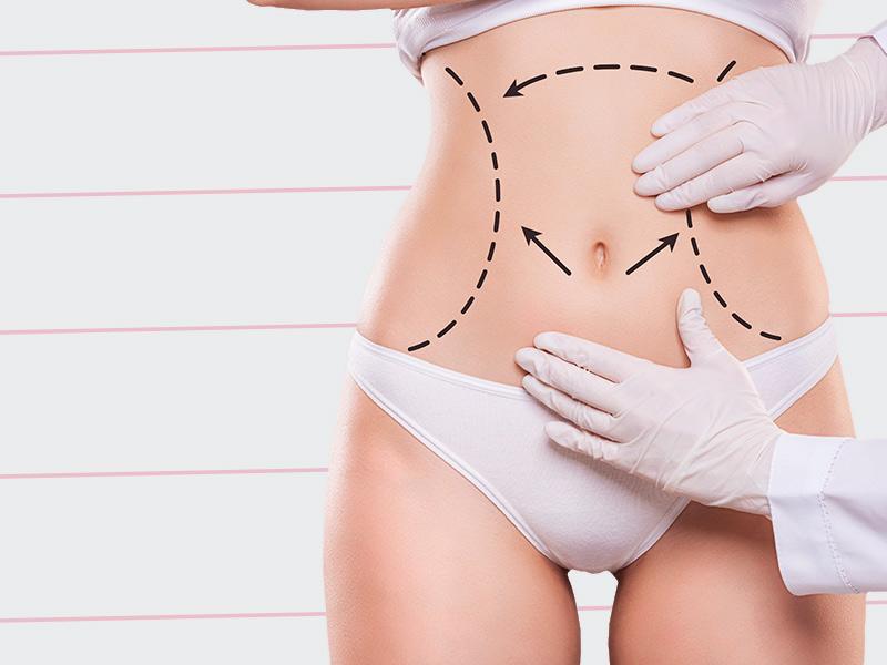 cirurgia remover estrias barriga