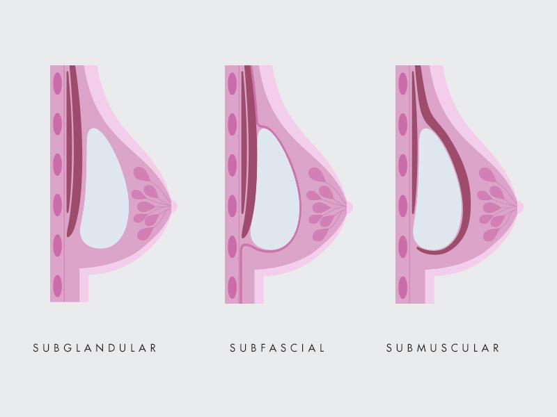 protese silicone mama cima baixo