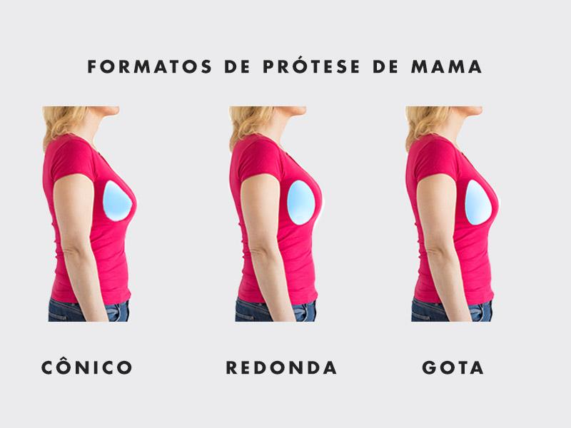 formatos protese dmama
