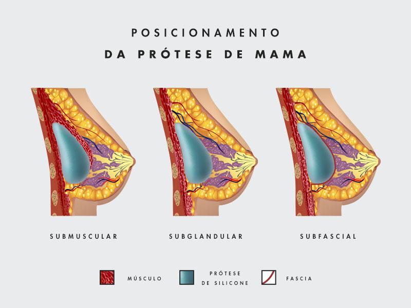 como colocar protese mama