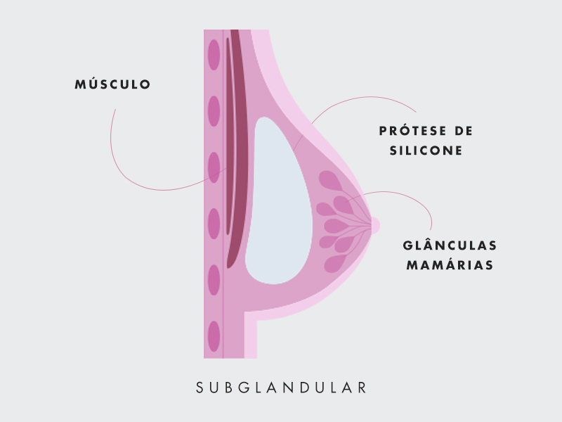 silicone cima musculo