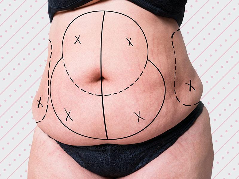 o que é abdominoplastia