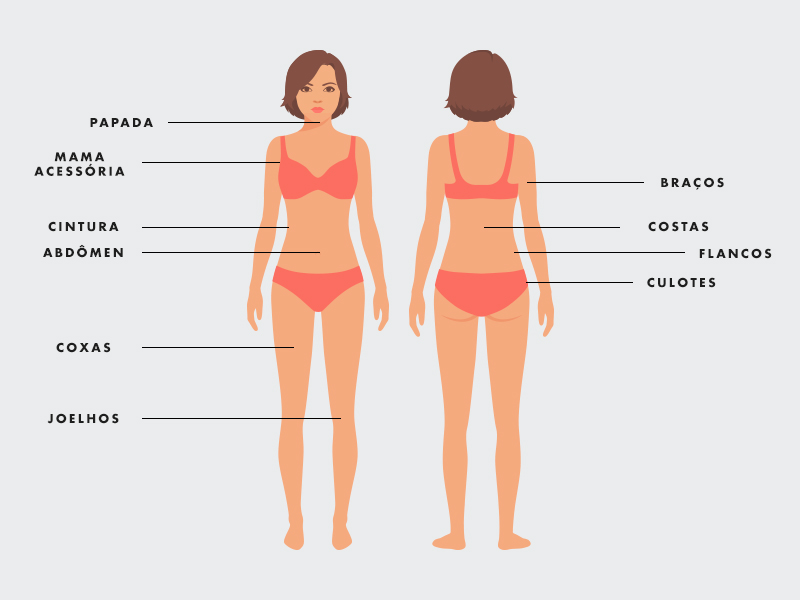 Diferença Abdominoplastia Lipoaspiração regiões