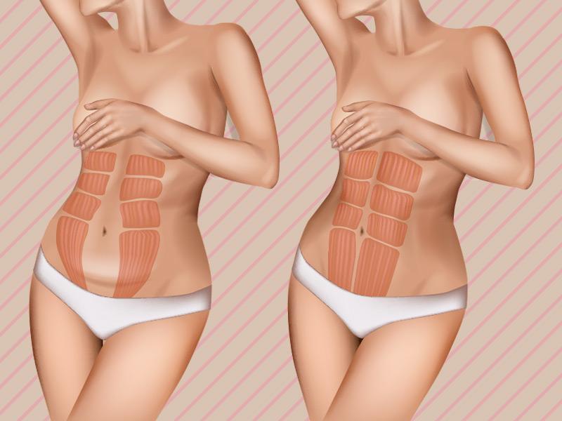 corrigir diástase abdominal