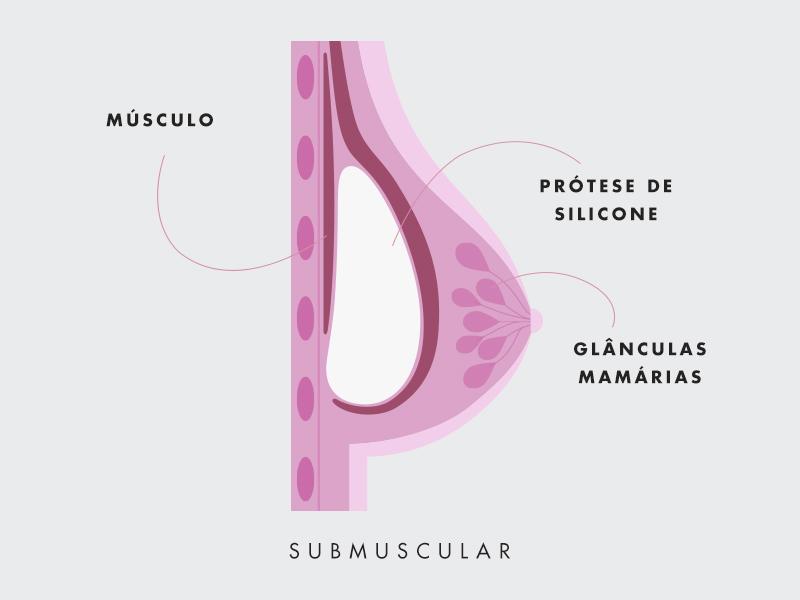 silicone baixo musculo