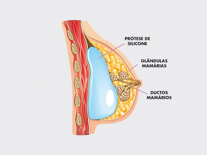 anatomia mama amamentação silicone