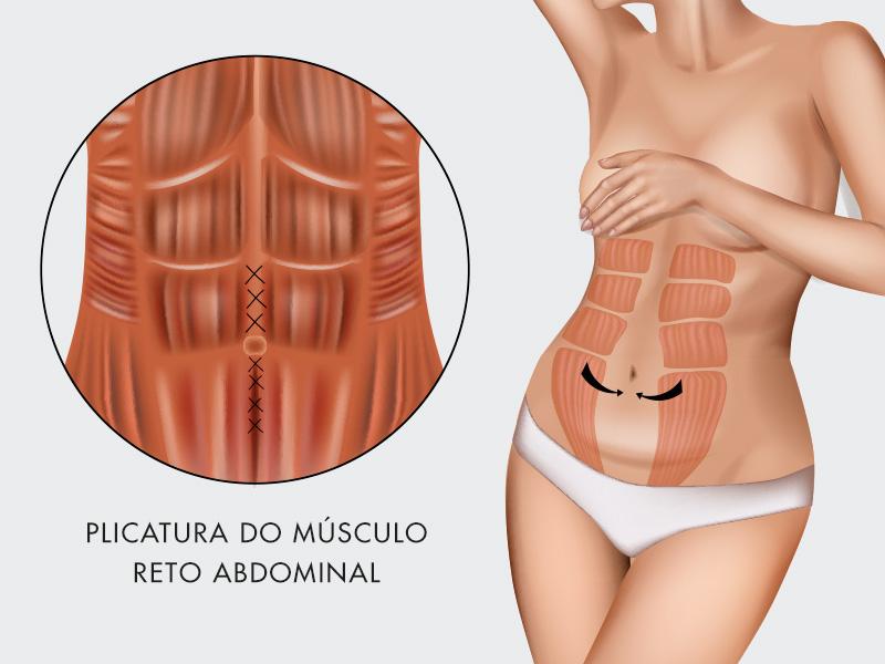 plicatura abdominoplastia