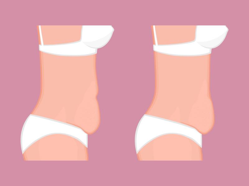 abdominoplastia classica