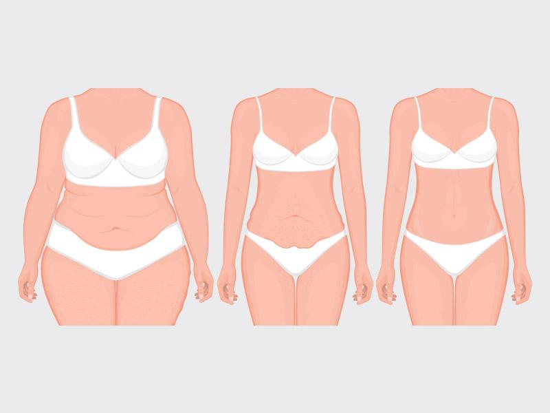 antes e depois abdominoplastia em ancora