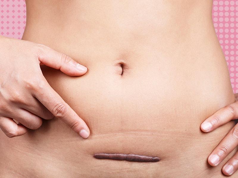 abdominoplastia complicações