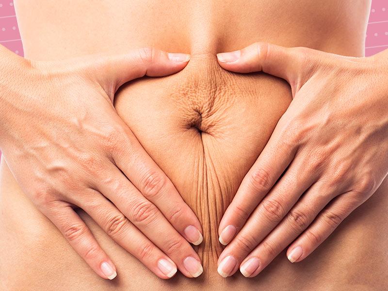 abdominoplastia risco
