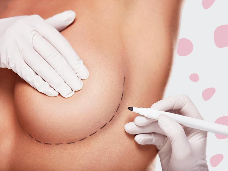 cirurgia retirada protese silicone
