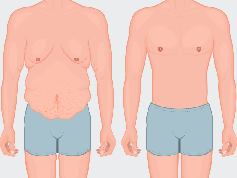 abdominoplastia masculina antes depois
