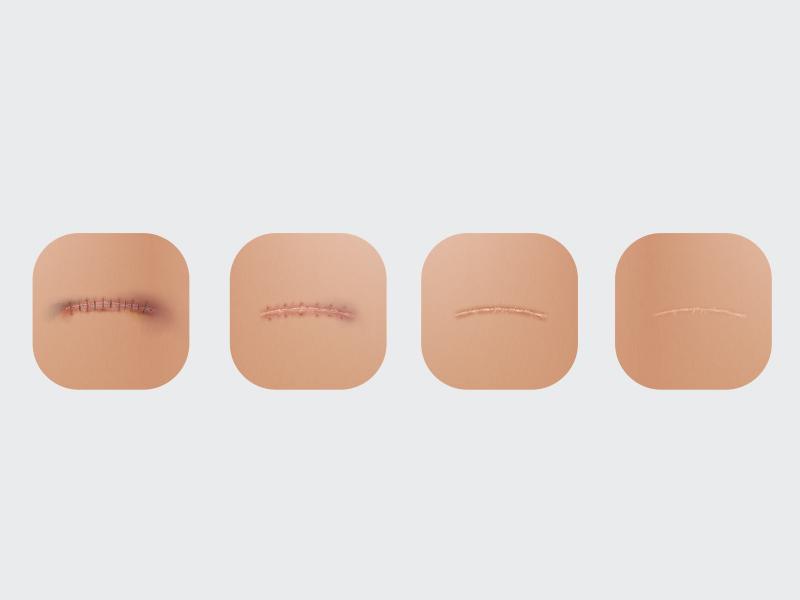 processo cicatrização da abdominoplastia