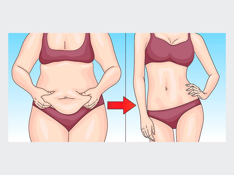 antes depois abdominoplastia mamoplastia