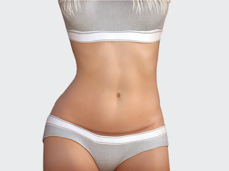 cicatriz cirurgia plástica abdominal