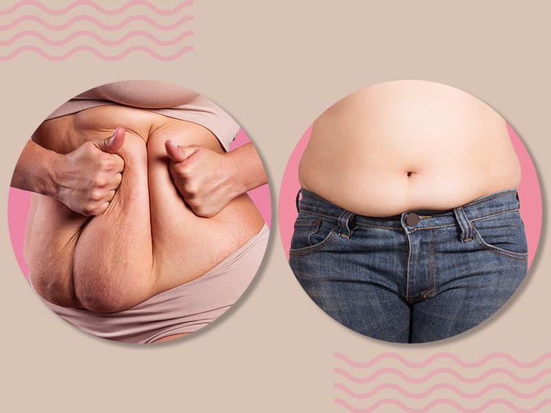 diferenca abdominoplastia lipoaspiracao