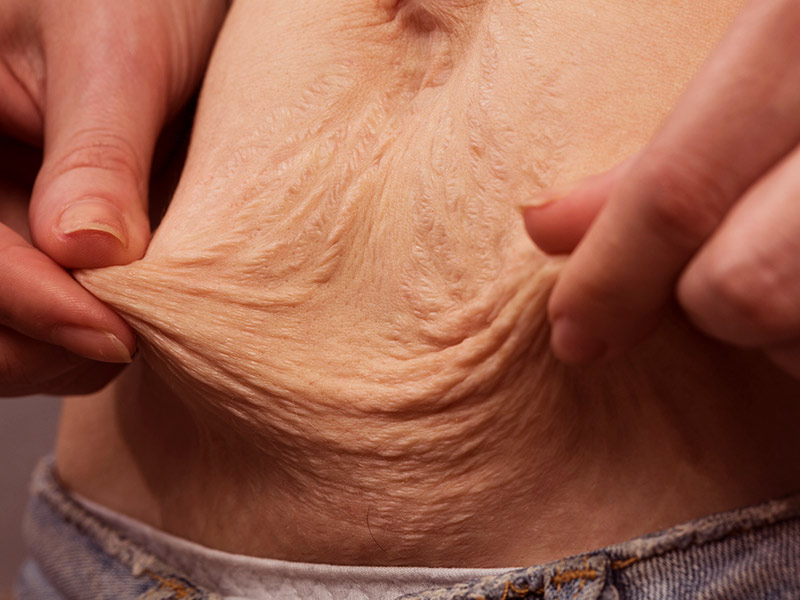 lipoaspiracao abdominoplastia