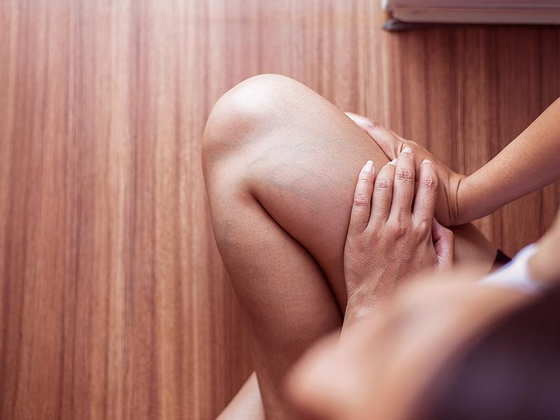 Abdominoplastia cinta compressiva apertada coxa