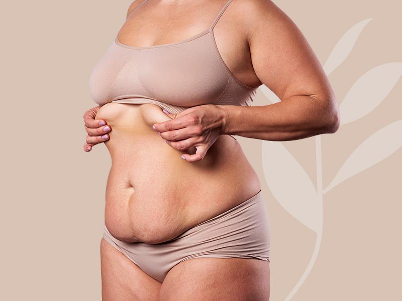 abdominoplastia pelo sus