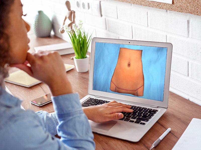 vídeo cirurgia abdominoplastia passo 5