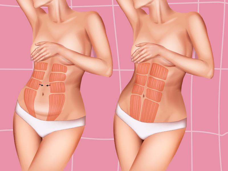 pontos abdominoplastia plicatura