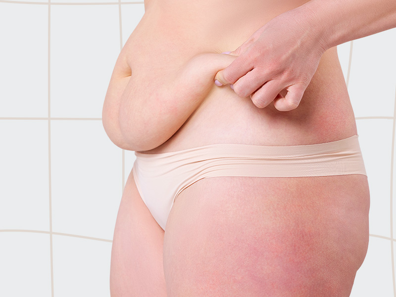 peso correto abdominoplastia