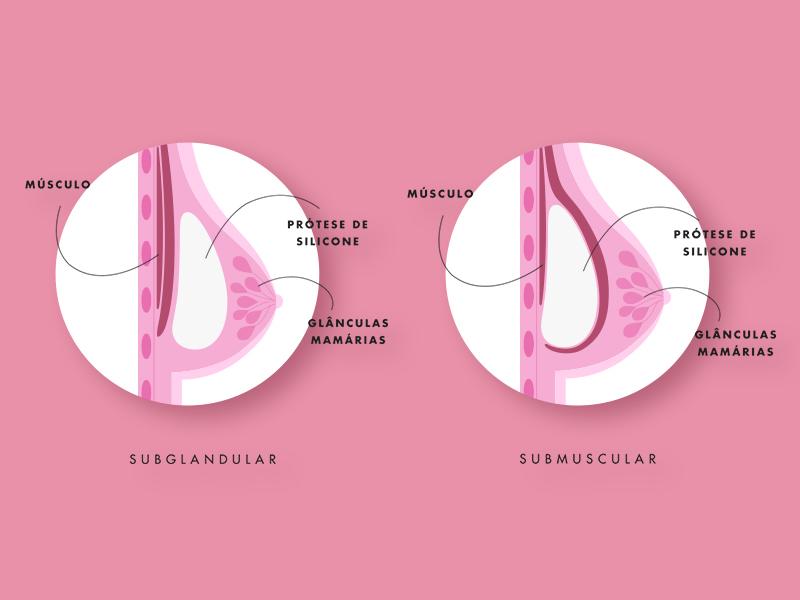 protese silicone cancer mama diagnóstico