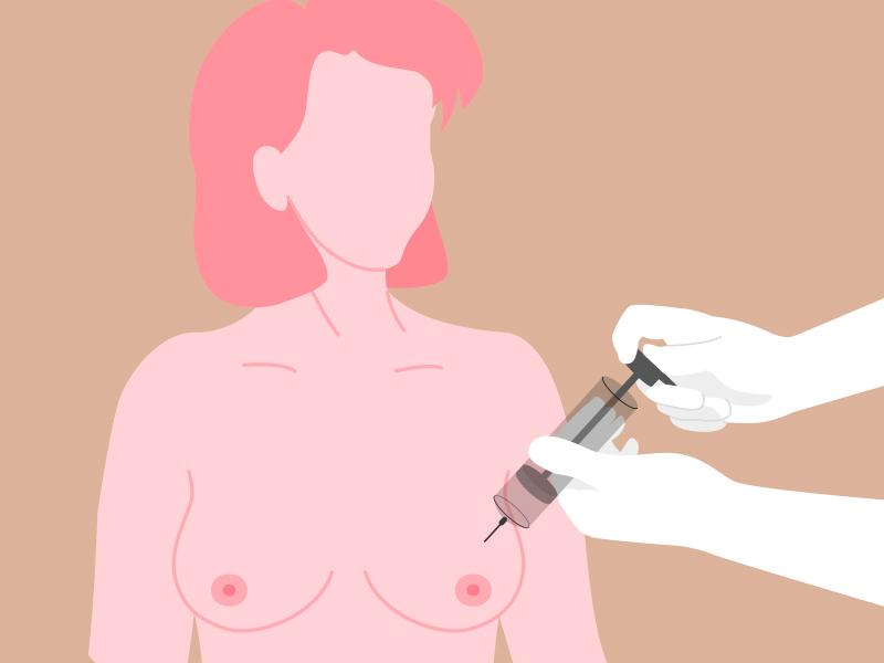 biopsia protese silicone cancer mama