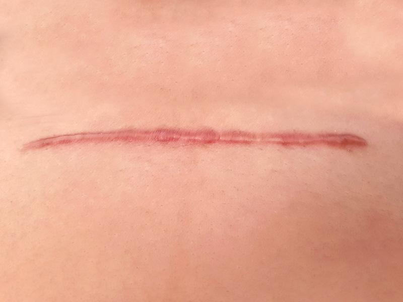 cicatriz hipertrofica mastopexia