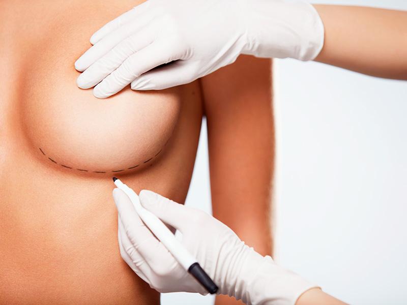 cirurgia de redução mama valor