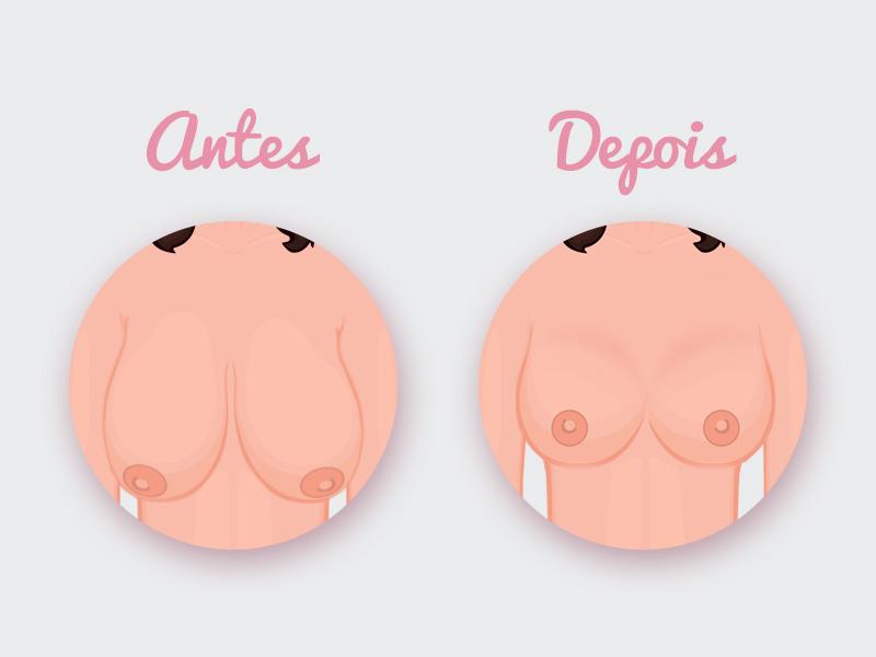 mamoplastia redutora protese antes depois