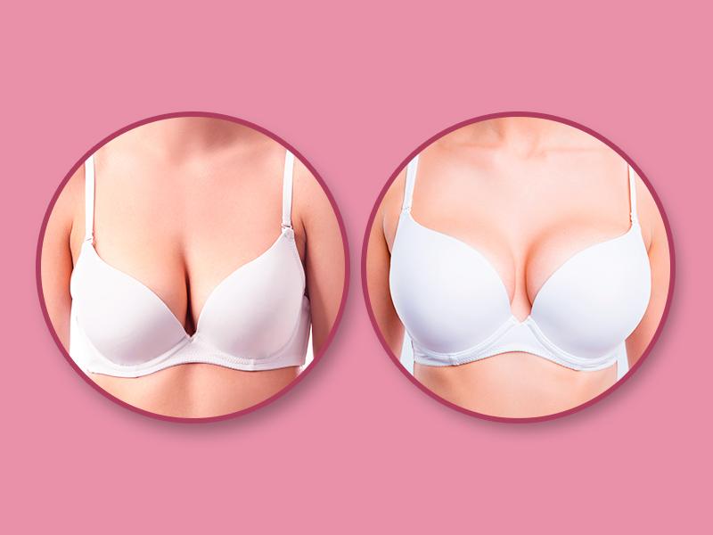 mamoplastia redutora fotos antes depois