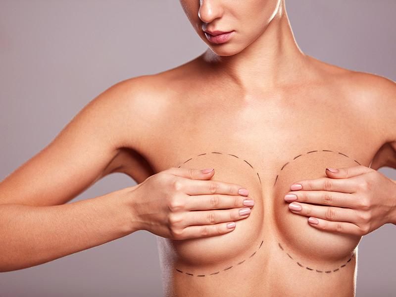 cirurgia plastica mastopexia protese