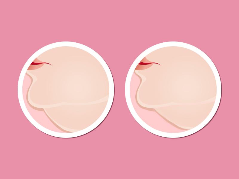 criofrequencia antes depois sessao