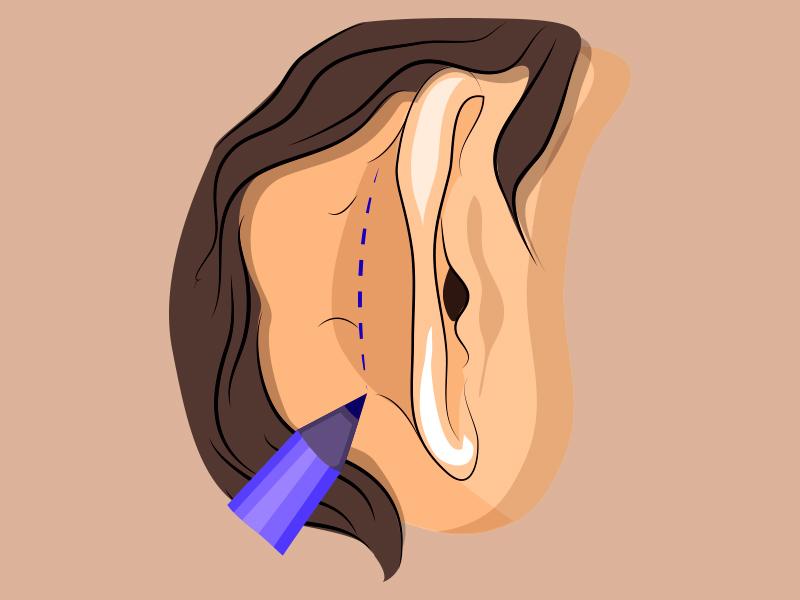 cicatriz cirurgia otoplastia