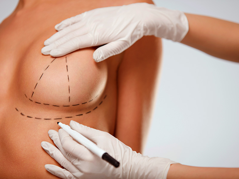 cirurgia lifting de mama